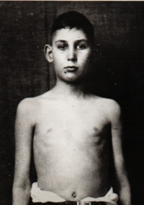 This is the same boy after he received insulin treatments.