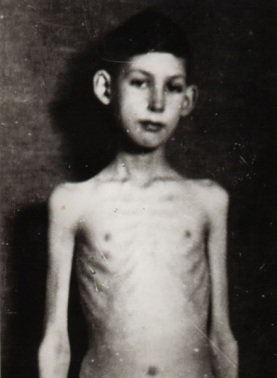 This is a photo of a young boy with diabetes before receiving insulin treatments.