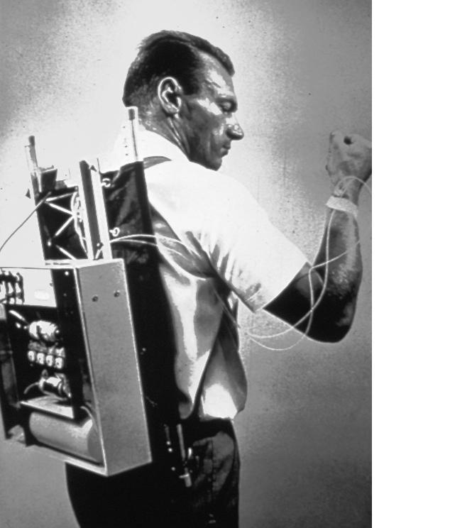 First insulin pump